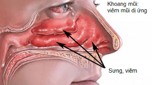 Viêm mũi dị ứng dễ nhầm với viêm xoang: Chuyên gia tai mũi họng chỉ cách phân biệt
