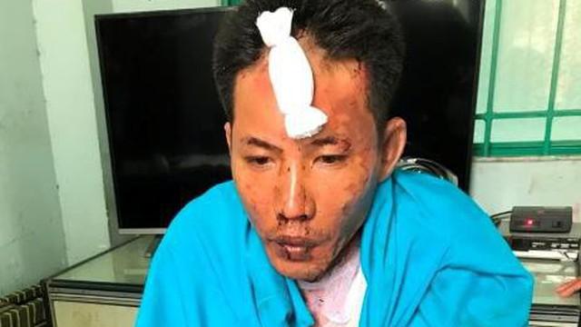 Vụ tạt xăng thiêu sống 3 mẹ con người tình: Bé gái 12 tuổi đã tử vong