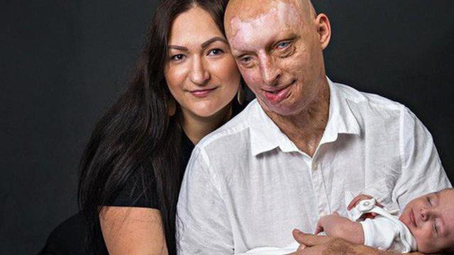 Bỏng nặng và mù mắt vì bị bạn gái tạt axit, chàng trai lại tìm được hạnh phúc bên người tình nguyện chăm sóc mình