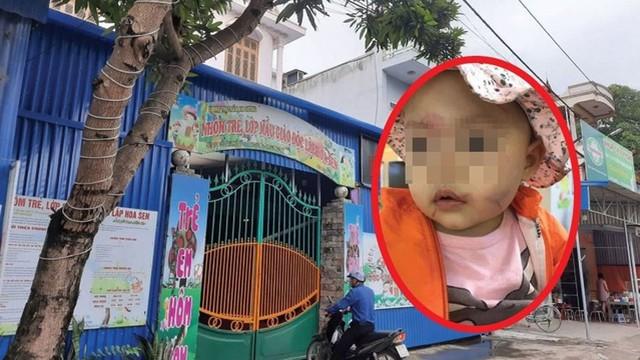 Hải Phòng: Cháu bé 14 tháng tuổi mặt bị bầm tím ngay buổi đầu tiên đến lớp