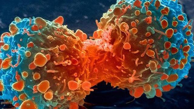 Vì sao những người có lối sống lành mạnh vẫn bị ung thư?