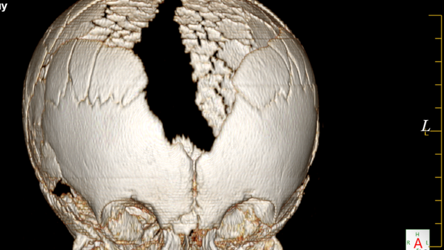 Tuyên Quang: Cậu bé sinh ra với phần đầu không có xương, mắc căn bệnh cực hiếm