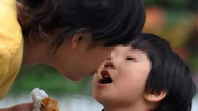 """BS sốc vì bé 6 tuổi hỏng toàn bộ dạ dày, nguy cơ ung thư vì thói quen """"huyền thoại"""" của bà"""