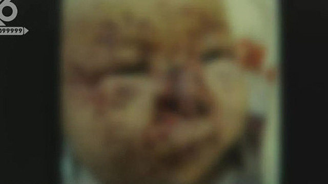 Bé 3 tháng tuổi bị chuột cắn hơn 100 vết trên mặt