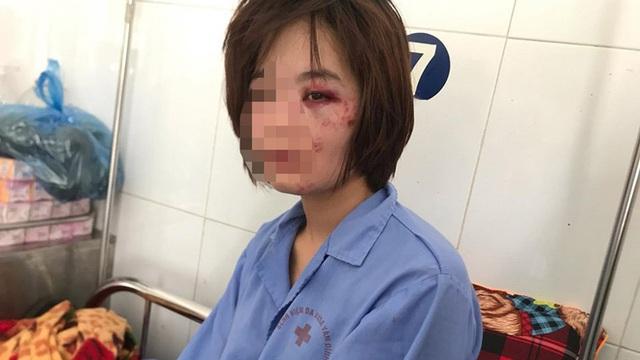 Truy nã 2 đối tượng đánh nữ nhân viên xe buýt nhập viện đúng ngày 20/10