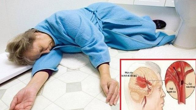 Trời lạnh, bệnh đột quỵ gia tăng: Có 3 dấu hiệu sau phải đến viện càng sớm càng tốt