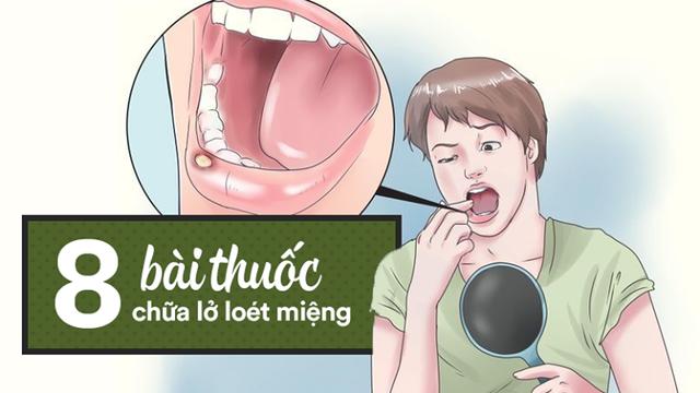 [Bài thuốc quý] Lở loét miệng gây đau đớn: Nên thử 8 cách chữa bằng thực phẩm đơn giản