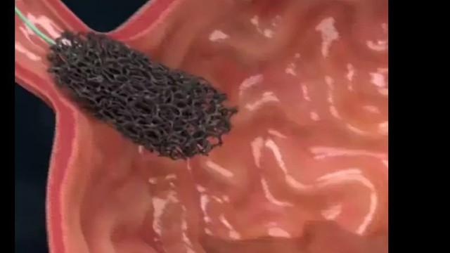 Bệnh nhân ở Hà Nội 16 tuổi đã ung thư vòm họng: Nghi ngờ thủ phạm là thứ người Việt rất mê