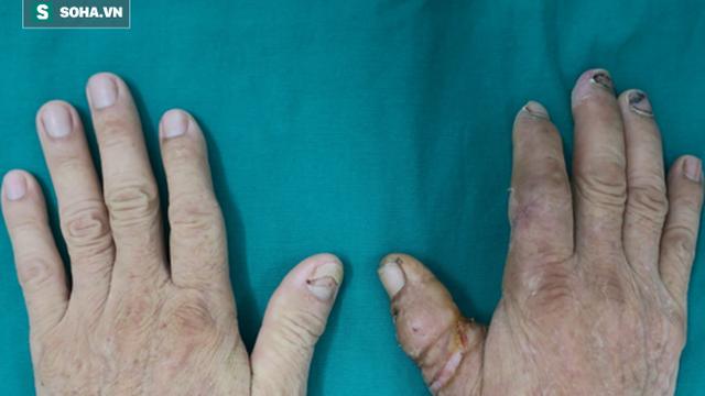 BS nghẹt thở nối ngón tay đứt lìa cho bệnh nhân tiểu đường lớn tuổi nhất từ trước đến nay