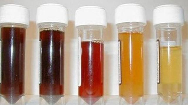 Nước tiểu có sắc lạ, sau 2 năm phát hiện khối u: BS khuyến cáo dấu hiệu không nên bỏ sót