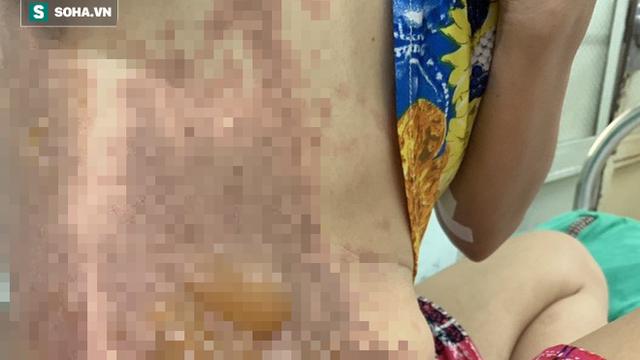 Người phụ nữ bị hàng xóm tạt cả chảo dầu đang sôi vì chuyện nhắc nhở đỗ xe ở Sài Gòn