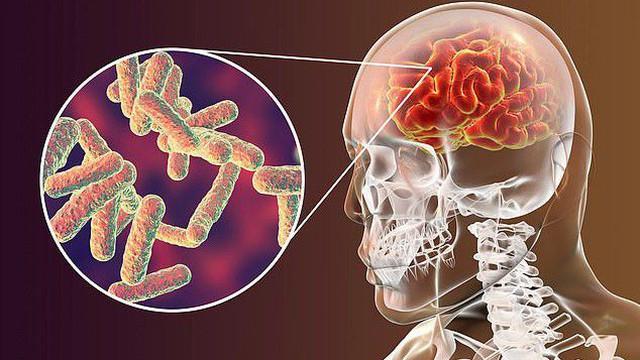 6 căn bệnh thường bị nhầm lẫn với bệnh khác: Chậm trễ điều trị có thể gây nguy hiểm