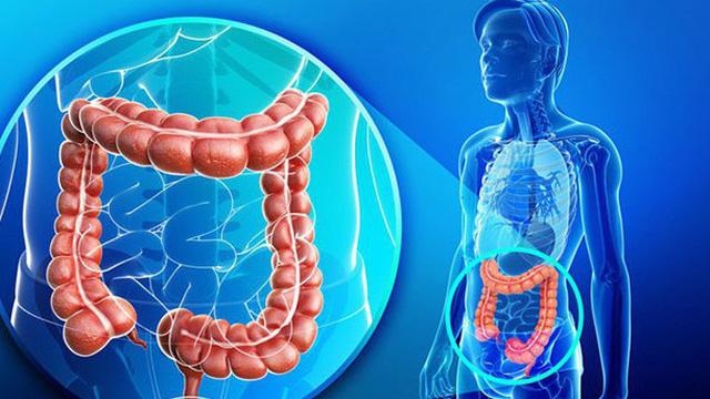 Hiểu đúng về nguyên nhân, triệu chứng hội chứng ruột kích thích để tìm ra cách chữa hiệu quả