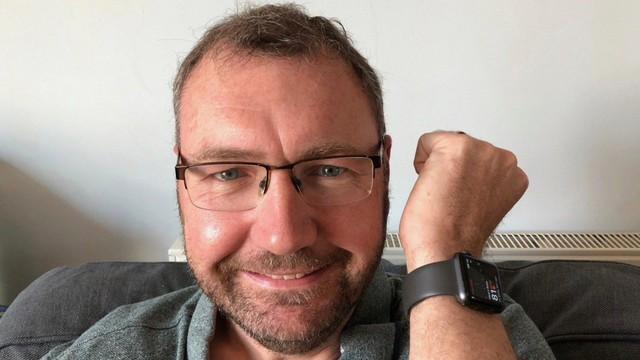 """Người đàn ông 48 tuổi phẫu thoát chết nhờ đi phẫu thuật tim theo """"lời"""" Apple Watch"""