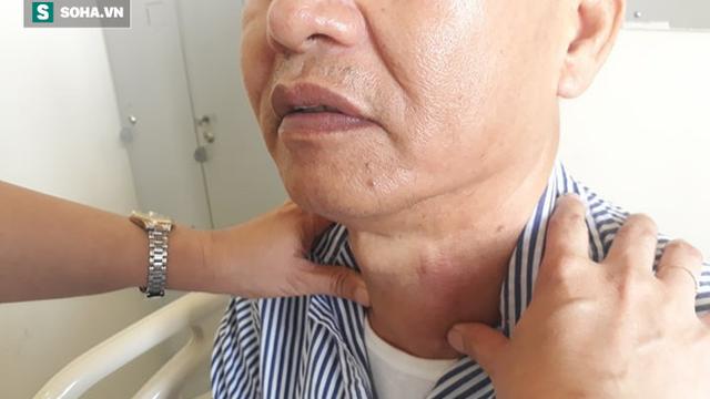 Nuốt nước bọt có triệu chứng này, cần cảnh giác với khối u vùng cổ