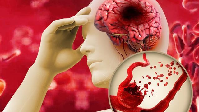 """Bệnh mỡ máu cao là """"con đường chết chóc"""": Khuyến cáo 8 nhóm người nên chú ý đặc biệt"""