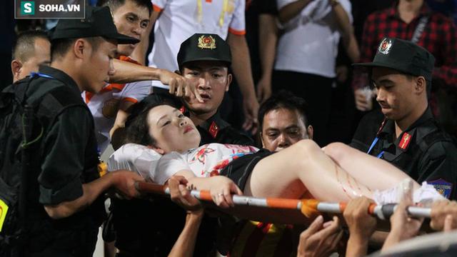 Nữ CĐV bị bắn pháo sáng kể lại giây phút kinh hoàng trên sân Hàng Đẫy