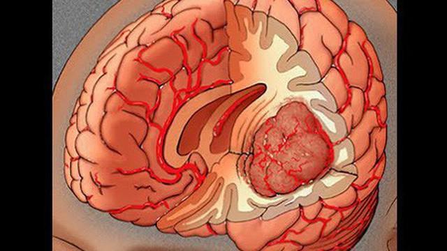 Bác sĩ BV 108: 8 dấu hiệu có thể bạn bị u não, nếu có cần đến viện kiểm tra ngay