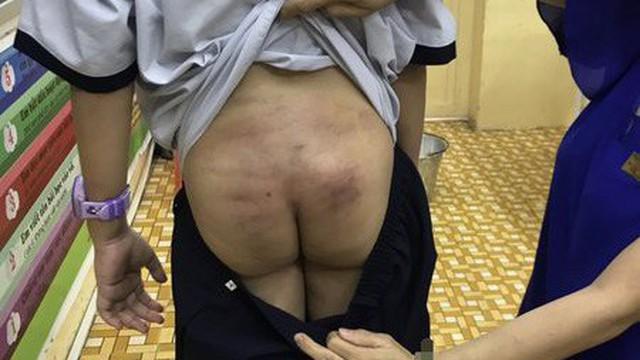 Vết bầm tím trên cơ thể bé trai ở Sài Gòn hé lộ nghi vấn bạo hành