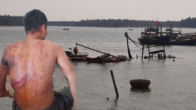 Vụ tàu cá cháy nổ làm 8 người thương vong: Tiếng nổ như bom hất văng cả nhóm người xuống sông