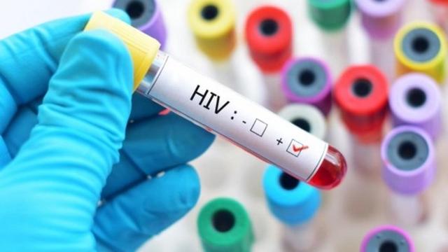 """Tình dục thiếu an toàn khiến nam thanh niên 3 ngày không ăn không ngủ, sợ """"chết"""" vì HIV"""