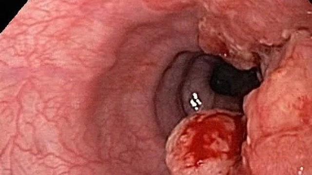 Ung thư thực quản nguy hiểm như thế nào?