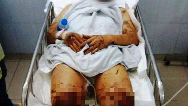 Người nhà Việt kiều bị tạt a xít ở Quảng Ngãi nói gì?