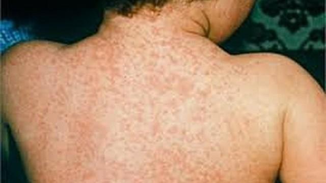56 tỉnh có bệnh sởi, Bộ Y tế yêu cầu tăng cường phòng chống bệnh