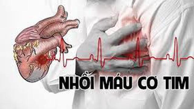 Nhồi máu cơ tim - bệnh lý nguy hiểm đe doạ tính mạng bằng cái chết rất nhanh