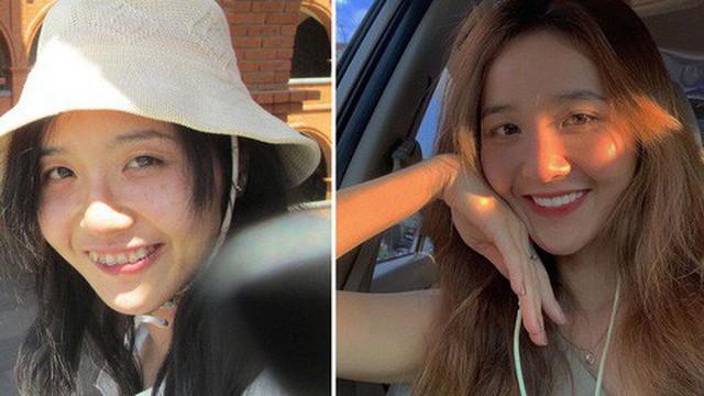 Kiên trì niềng răng tận 4 năm, cô gái lột xác xinh đẹp đến nỗi bị nghi ngờ là đã đụng chạm dao kéo