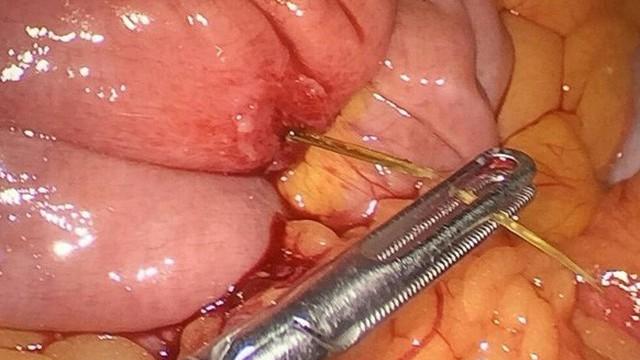 Xương cá kìm gần 4cm đâm thủng ruột non người phụ nữ