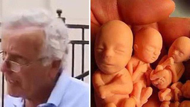 Phát hiện 2.200 xác thai nhi trong nhà một bác sĩ Mỹ và sự thật kinh hoàng khác được tiết lộ