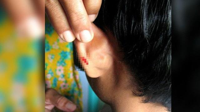 Malaysia: Không làm bài tập về nhà, học sinh bị thầy giáo phạt bằng cách dập ghim vào tai