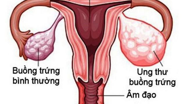 1 gia đình có 3 chị em gái ruột cùng bị u buồng trứng, bác sĩ chỉ ra nguyên nhân và việc chị em cần làm để phát hiện sớm bệnh