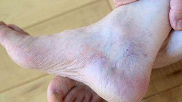4 triệu chứng dễ thấy ở bàn chân, cảnh báo gan của bạn đang hoạt động kém