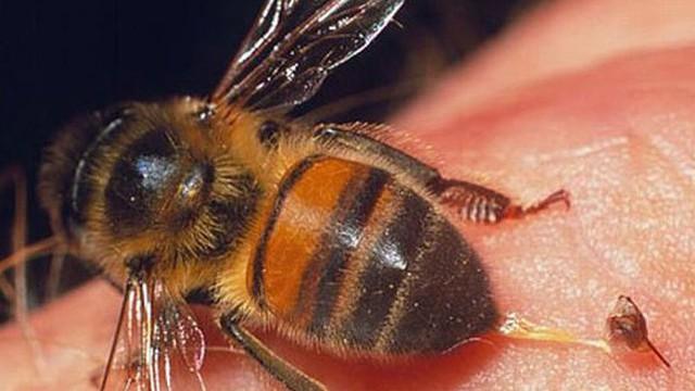 Đi học về, bé 3 tuổi bị ong đốt dẫn tới suy gan, thận