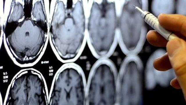 Càng hoạt động não bộ nhiều, con người càng chết sớm, ít dùng não lại sống lâu