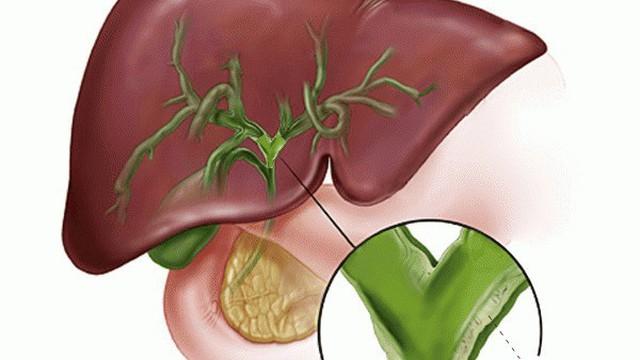6 bài thuốc trị viêm đường mật