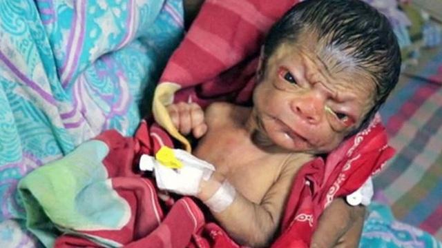 Cả ê-kíp bác sĩ đỡ đẻ choáng váng khi em bé chào đời trong hình hài của một ông lão 80 tuổi