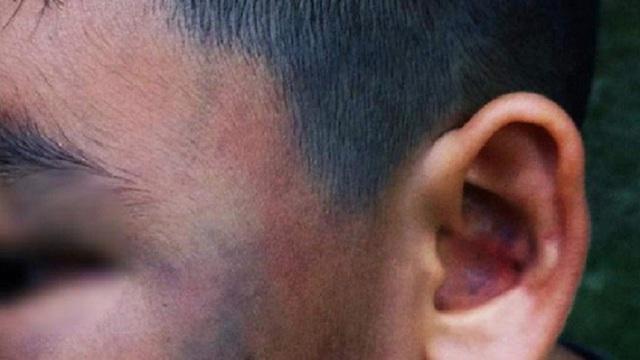 Đánh bé trai 8 tuổi đa chấn thương vì nghi trộm gà