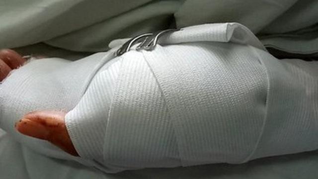 Đắk Nông: Tranh chấp đất rẫy, cô giáo bị chồng cũ chém gần đứt lìa 2 bàn tay