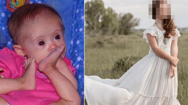 Bé gái mắc hội chứng Down khiến bác sĩ lắc đầu khuyên gia đình gửi vào trại trẻ để tránh gánh nặng, 15 năm sau ai cũng ngạc nhiên khi nhìn thấy em
