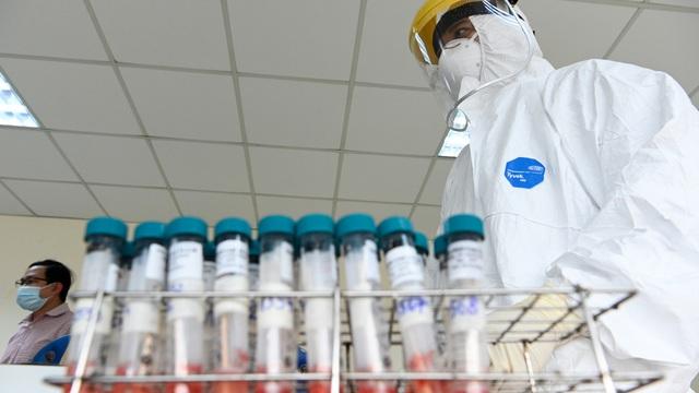 Làm xét nghiệm dịch vụ phát hiện SARS-CoV-2 ở đâu? Mức phí bao nhiêu?