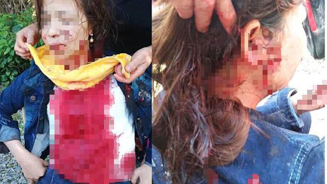 Chồng dùng chai bia vỡ đuổi giết vợ vì nghĩ vợ xem thường mình