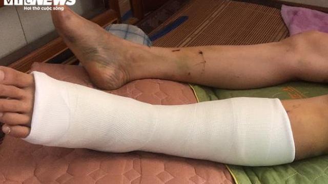 Trưởng Ban Nội chính Thái Bình gây tai nạn rồi bỏ trốn: Lời kể người thoát chết