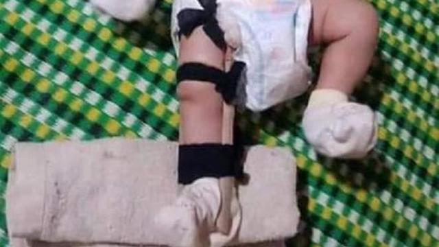 Điều tra thông tin bé 2 tháng tuổi bị cha đẻ đánh gãy chân