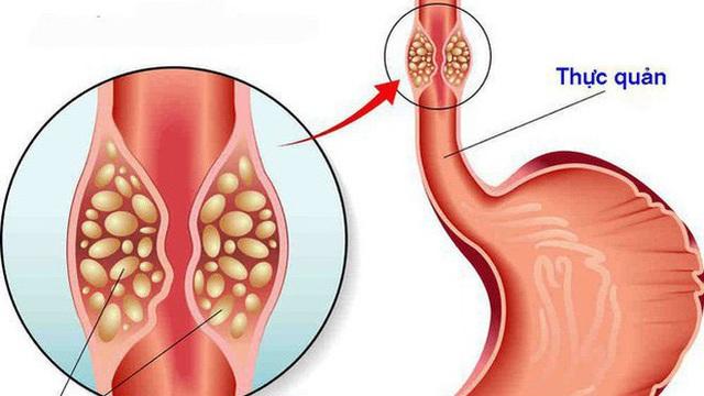 Phát hiện ung thư nhờ miếng thịt ngan: Bác sĩ nhắc khi ăn có dấu hiệu này phải khám ngay