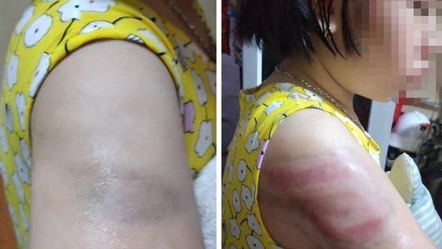 Nữ giáo viên đánh học sinh lớp 4 bầm tím cánh tay tường trình do mất bình tĩnh
