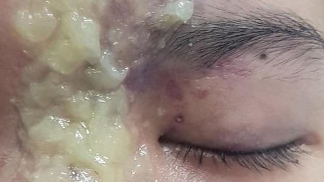 Nữ sinh 15 tuổi mù mắt sau khi tiêm filler nâng mũi