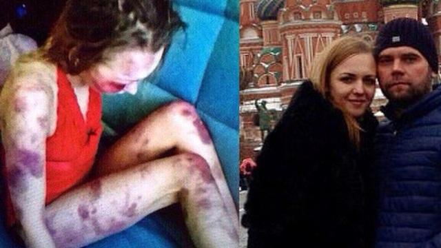 Chồng đánh đập vợ dã man nhiều giờ liền khiến nạn nhân hôn mê sâu rồi qua đời trong khi hắn chụp ảnh khoe mẽ với bạn bè